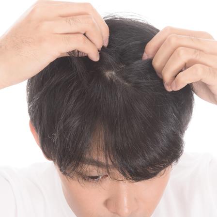 hair_inc鍼灸